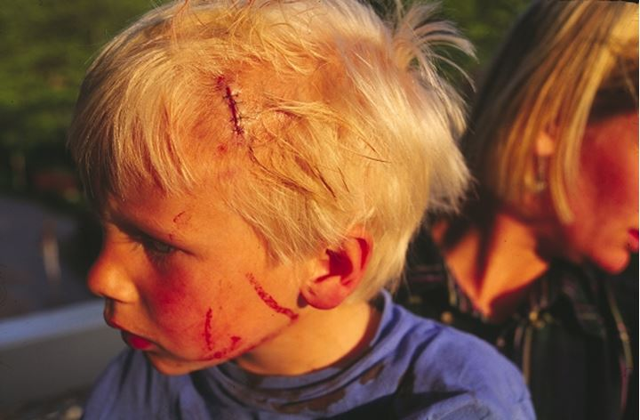Side view of a head injured boy