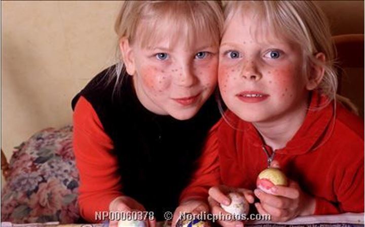 Sisters with freckles