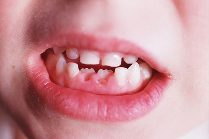 Close-up of teeth of a child who just lost his baby teeth