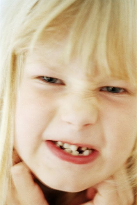 Child showing gaps in mouth where babyteeth has fallen out