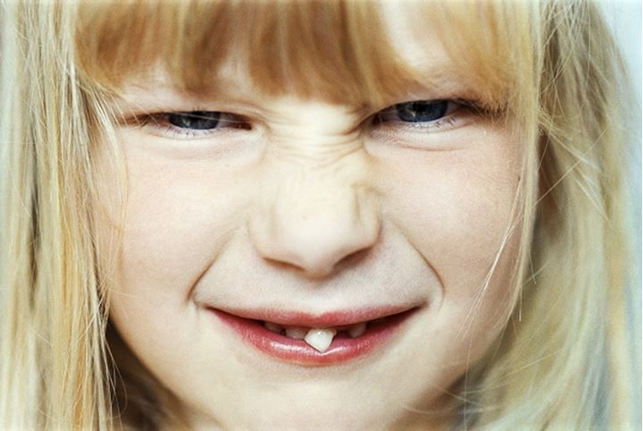 A little girl with a loose tooth