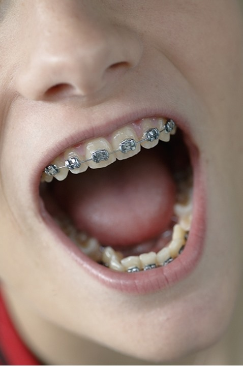 Widely open mouth with braces on teeth in detail, Sweden.